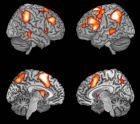 fmri的大脑活动图一例