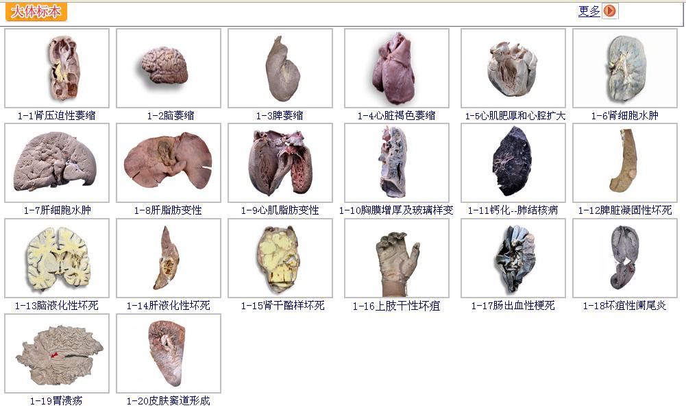 数字化虚拟人体