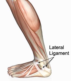 踝关节扭伤之踝关节外侧韧带损伤lateral