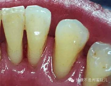 图1,洗牙前图2,洗牙后-科学网 来给洗牙辟个谣 健康不闹着玩的博文