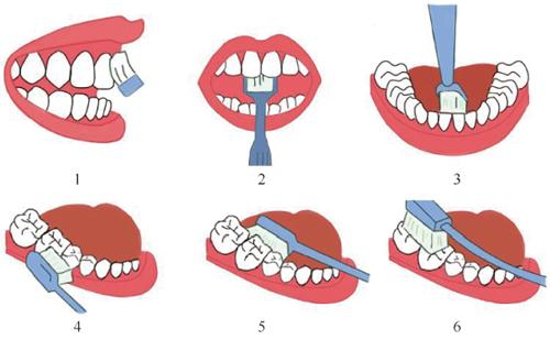 """如何使用牙线_科学网—好好爱""""牙""""丨四川大学华西口腔医院专家给你贯穿 ..."""