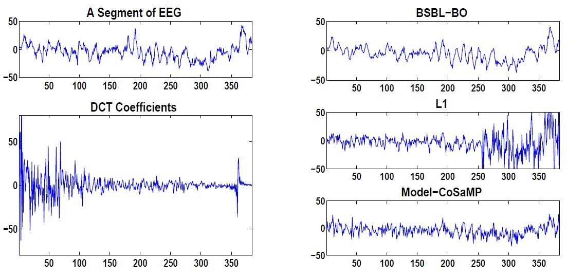 科学网—我们一篇脑电信号的压缩感知文章被ieee