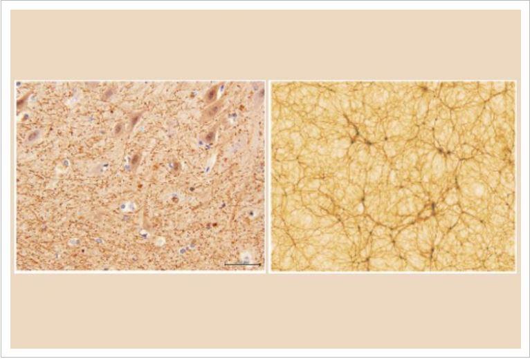 Universe-Brain-3-1.jpg