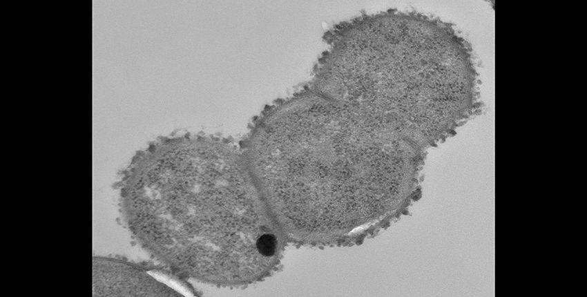 瘤胃球菌gnavus.jpg